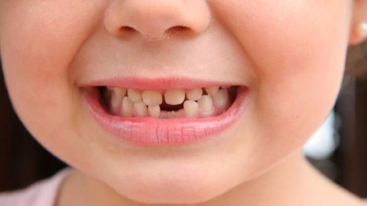Dentizione
