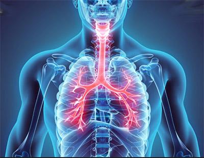 Asma bronchiale