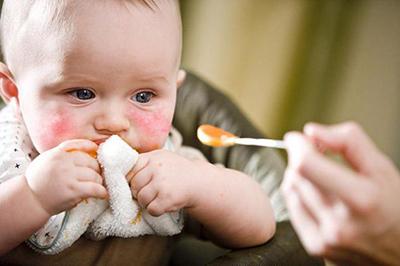 Diatesi nel bambino