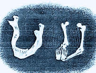i segreti dello scheletro